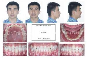 DR Nam0428