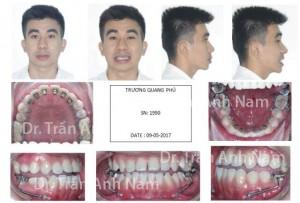 DR Nam0429