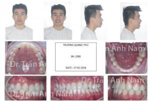 DR Nam0430